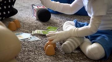 Rzecznik praw dziecka interweniuje ws. chorych na EB. Apeluje do ministra zdrowia
