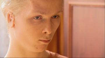 """Lekarze zoperowali 22-latkowi zdeformowane ucho. """"Miało dojść do poprawy, a pogorszyło się"""""""