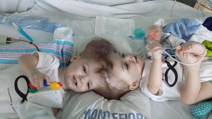 Rozdzielili syjamskie bliźnięta. Chłopcy byli złączeni głowami