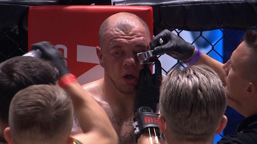 KSW 62: Przerażający widok! Tomasz Sarara pokazał zdjęcie kontuzjowanego oka