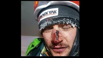 Wypadek Bieleckiego na K2. Złamany nos i sześć szwów