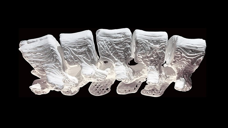 Chcą leczyć złamania za pomocą kości wydrukowanych w 3D