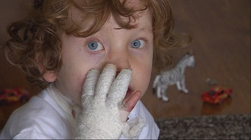 Ciało 4-letniego Krzysia to otwarta rana. Potrzebuje drogich plastrów. Od 1 lipca podrożeją o połowę