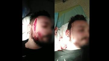 """Atak po manifestacji w Gdyni. """"Wyciągnął nóż i rozciął mi twarz"""""""