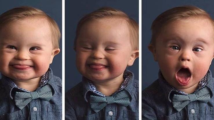 Chłopiec z zespołem Downa będzie jednak modelem. Znalazła się firma, która chce mu dać szansę