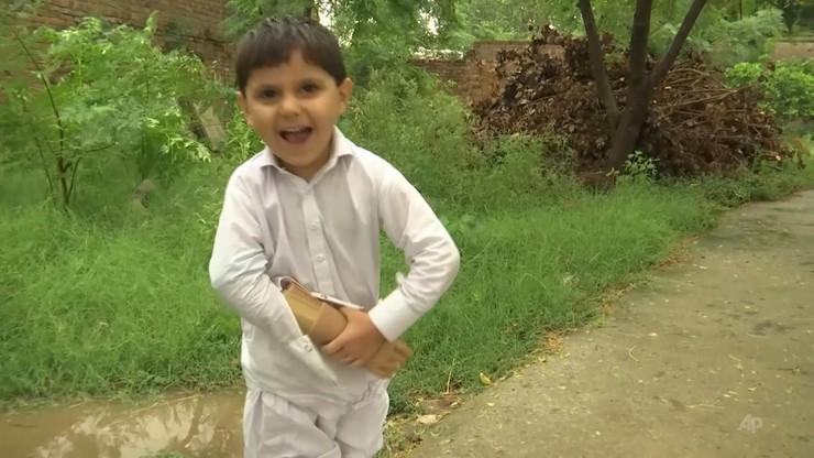 Pakistan. 4-latek najmłodszym pacjentem z bionicznym ramieniem