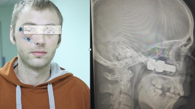 Poderwana z jezdni śruba utkwiła w czaszce 30-latka
