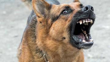 Pies zaatakował 3-letnie dziecko. Ugryzł je w twarz i szyję