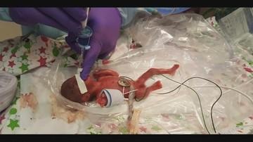 Saybie opuściła szpital. Dziewczynka po urodzeniu ważyła niespełna 244 gramy