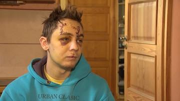 22-latek potrącony przez samochód apeluje o pomoc w ustaleniu sprawcy