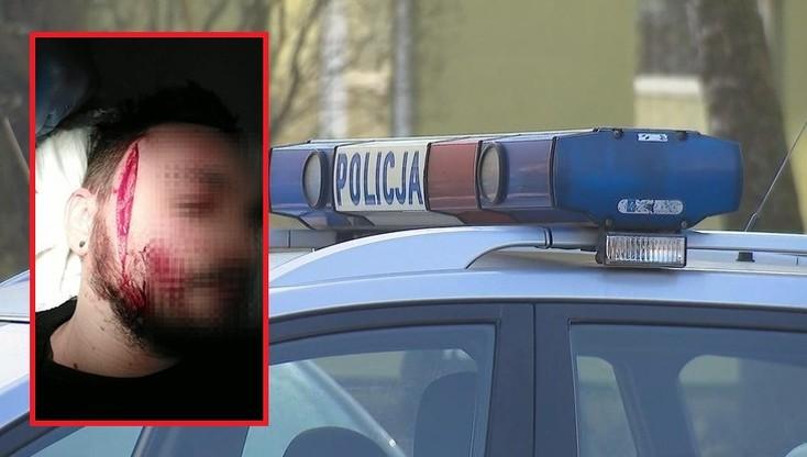 Zaatakował nożem po manifestacji w Gdyni. Grozi mu 5 lat więzienia