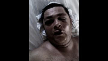 Zmarł po ataku zawodnika MMA. Wyrok tylko na papierze
