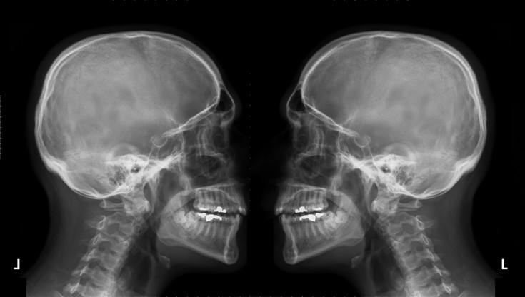 Nowotwory głowy i szyi - badanie może uratować życie