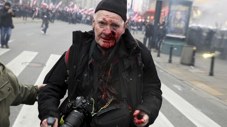 """74-letni reporter postrzelony przez policję na Marszu Niepodległości. """"Solidarność nie odpuści"""""""