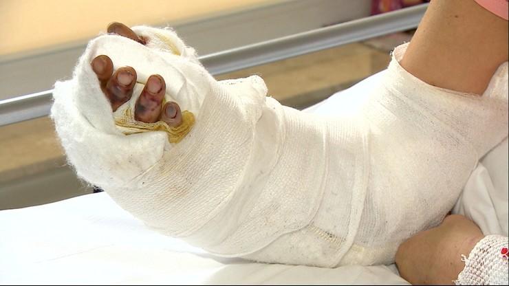 Maszyna oderwała kobiecie rękę. Przyszyli ją lekarze z nowego oddziału