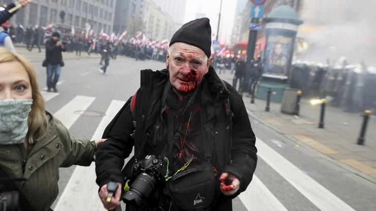 Fotoreporter postrzelony na Marszu Niepodległości. Policja: nieszczęśliwy wypadek