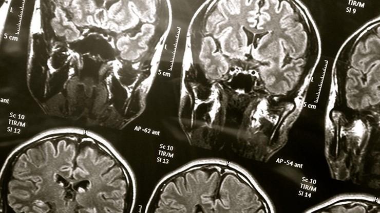 """""""USA Today"""": naukowcy zaniepokojeni, że COVID-19 może prowadzić do demencji"""
