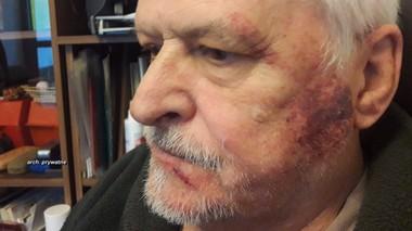 Kontrowersyjna interwencja policji. 77-latek na 9 dni trafił do szpitala