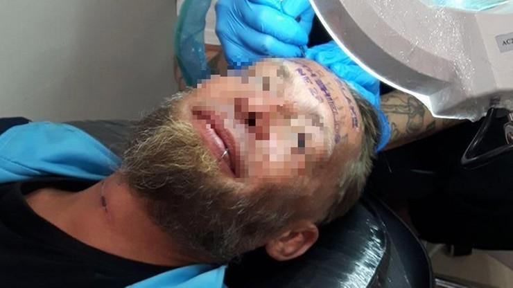 Bezdomny Polak za 100 euro wynagrodzenia zgodził się na tatuaż na czole