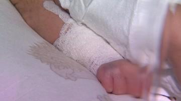 4-miesięczny chłopiec z urazem ręki trafił do szpitala. Rodzice podejrzani o znęcanie