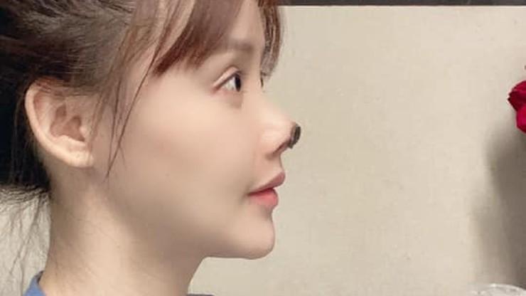 Aktorka ostrzega przed nieudaną operacją plastyczną. Odpadł jej kawałek nosa