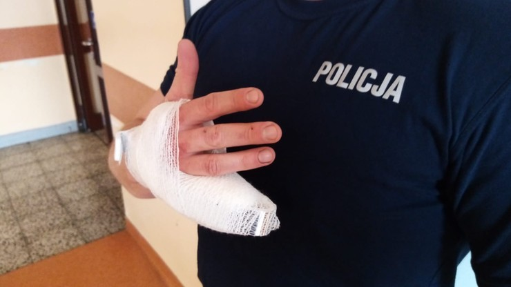 Odgryzł policjantowi palec. Ruszył proces 29-latka