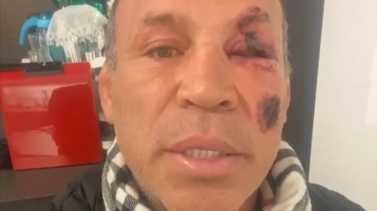 """Legenda MMA potrącona przez auto. """"Mogłem umrzeć"""""""