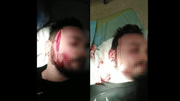 """Gdynia: atak po manifestacji przeciwko wyrokowi TK. """"Wyciągnął nóż i rozciął mi twarz"""""""