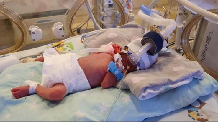 Pięcioraczki w poznańskim szpitalu. Taki poród zdarza się raz na 50 milionów
