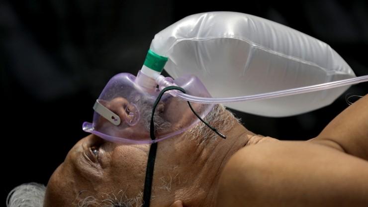 Zmiany w płucach u pacjentów, którzy przeszli Covid-19. Naukowcy alarmują