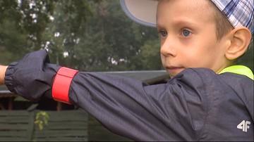 Chłopiec nie miał mięśni brzucha, pomogli lekarze z Gliwic