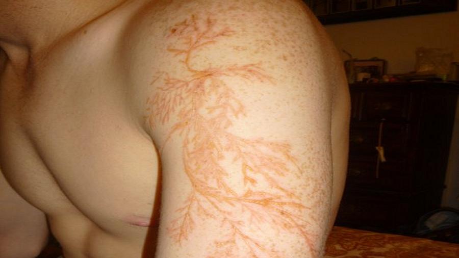 Błyskawica zrobiła mu na ramieniu niezwykły tatuaż w kształcie pnącza, a on niczego nie poczuł