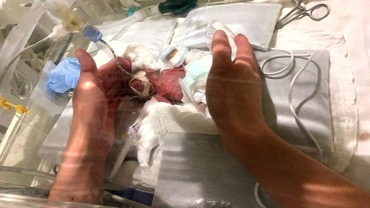 Noworodek rekordzista. Gdy się urodził, ważył zaledwie 268 gramów