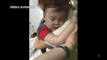 """""""Alfie nie potrzebuje już intensywnej opieki medycznej"""". Rodzice poproszą o przeniesienie go do domu"""