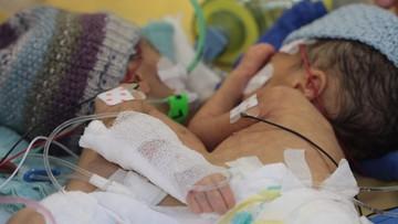 Najmłodsze bliźniaki syjamskie rozdzielono w Szwajcarii