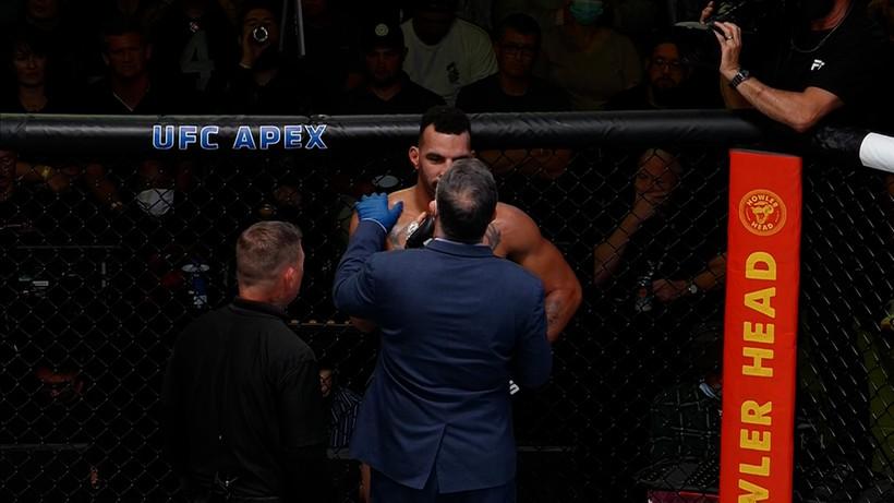 Zakrwawione zęby zawodnika UFC. Groźnie wyglądający uraz (ZDJĘCIE)