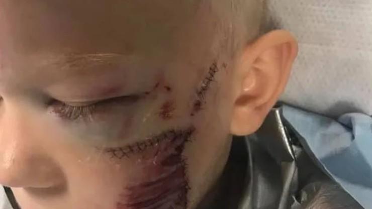 6-latek uratował siostrę przed atakiem psa. Zwierzę rozszarpało mu twarz