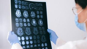 Jak SARS-CoV-2 może atakować mózg? Nowe badanie