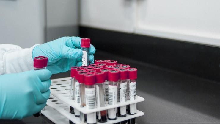 Koronawirus. WHO domaga się kontroli w chińskich laboratoriach