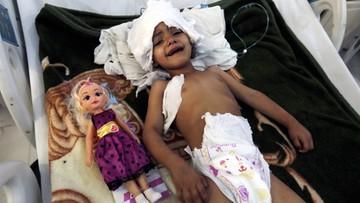 ONZ: Głód zagraża połowie populacji Jemenu
