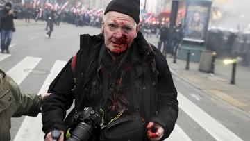 """74-letni reporter postrzelony przez policję. """"Solidarność nie odpuści"""""""