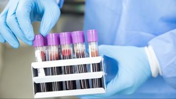 Grupa krwi może wpływać na przebieg Covid-19. Zbadano ponad 2 mln osób