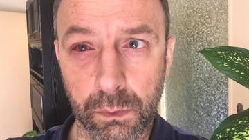 """""""Prawe oko nie nadaje się do niczego"""". Burmistrz Krosna o stanie zdrowia po tragicznym żarcie strażaków"""