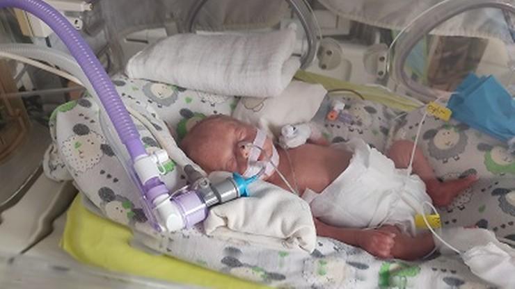 Lekarze uratowali nienarodzone dziecko. Przetoczyli krew w łonie matki