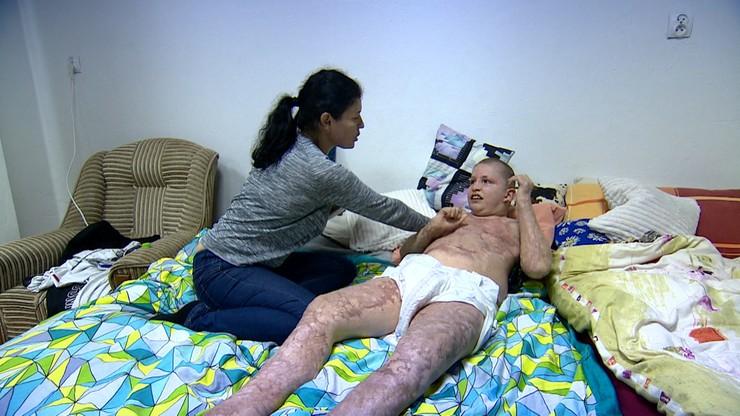 Ciężko poparzony Karol spędził w szpitalu pół roku. Teraz nie ma dokąd wrócić